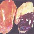 Що робити, якщо збільшена печінка: ожиріння печінки