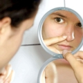 Як позбутися вугрів на носі?