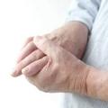Як лікувати артрит пальців рук ревматоїдний?