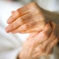 Як лікувати артроз пальців ніг народними засобами?