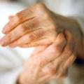 Як лікувати артроз пальців в домашніх умовах?