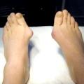 Як лікувати кісточки біля великого пальця ноги?