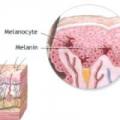 Як збільшити меланін в організмі?