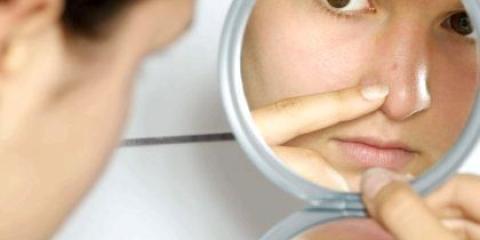 Як швидко позбутися від прищів на обличчі без слідів?