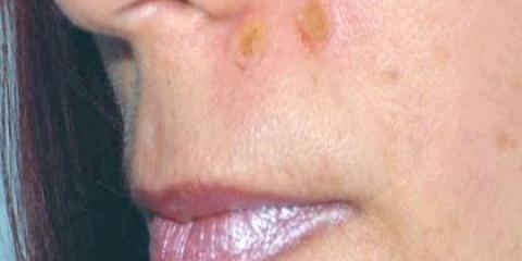 Як доглядати за шкірою після видалення родимки?