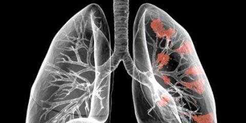 Як відновити легкі після куріння?