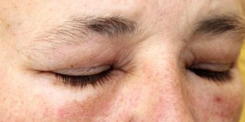 Відновлення функції очей